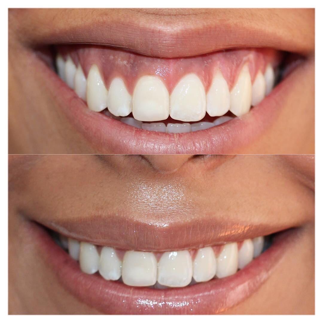 Массаж от морщин возле губ