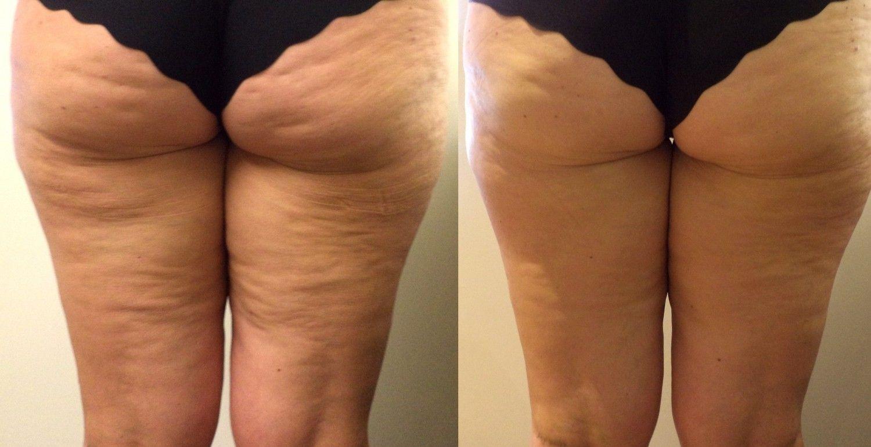 целлюлит проявляется при похудении