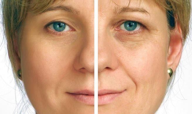 Фотоомоложение лица одесса фотоэпиляция светлых волос на лице отзывы