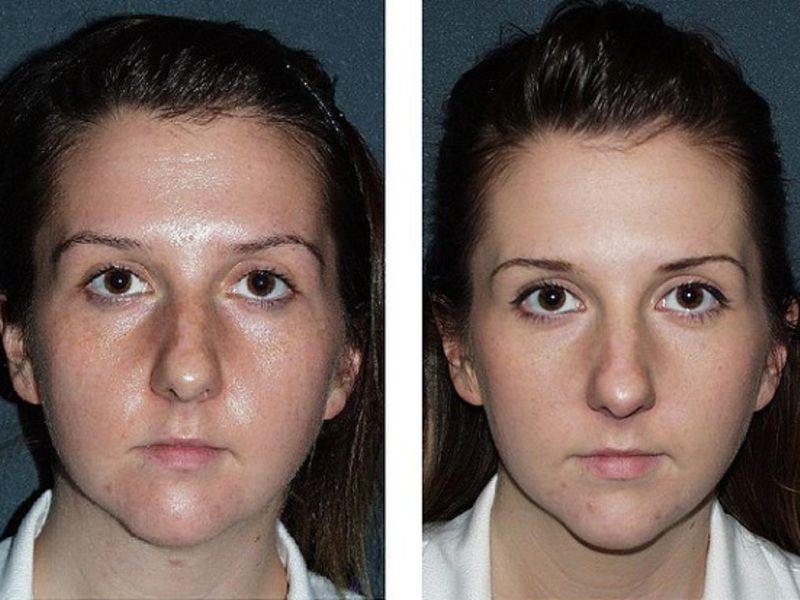 гликолевый пилинг для лица фото до и после