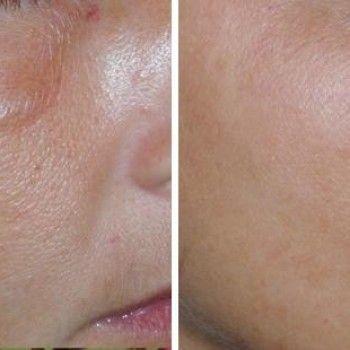 Пилинг лица гликолевой кислотой, до и после