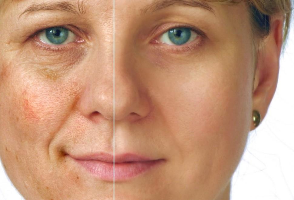 мезотерапия лица - до и после