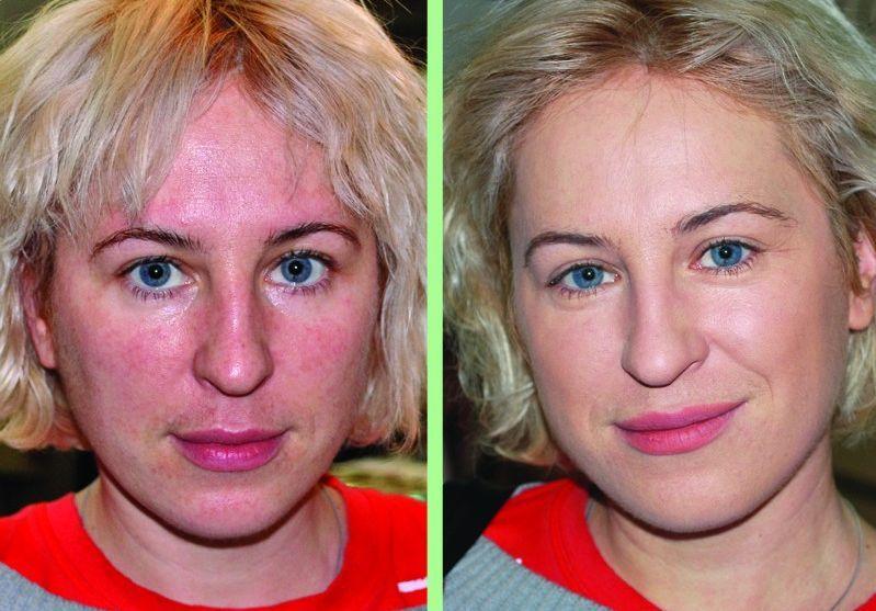 Миостимуляция лица фото до и после