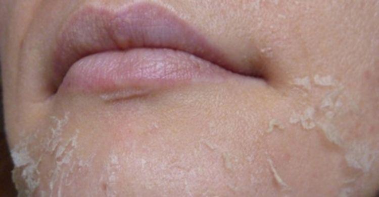 Что делать при аллергии на лице у грудничка